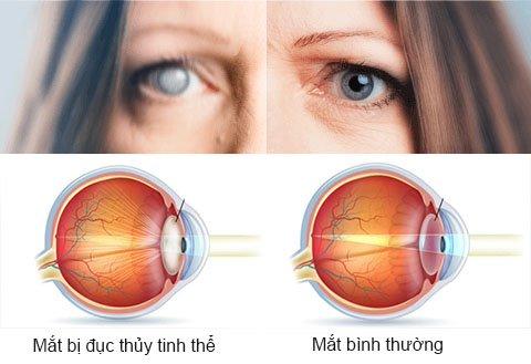 Bệnh đục thủy tinh thể và cườm khô ở mắt